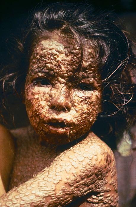 459px-Child_with_Smallpox_Bangladesh.jpg